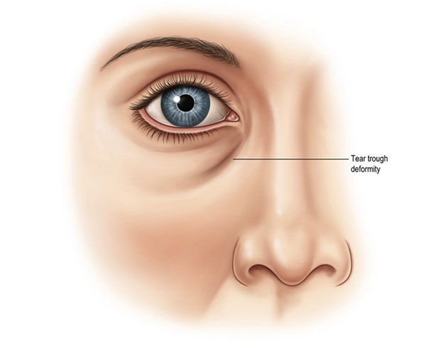 Blepharoplasty Figure 2