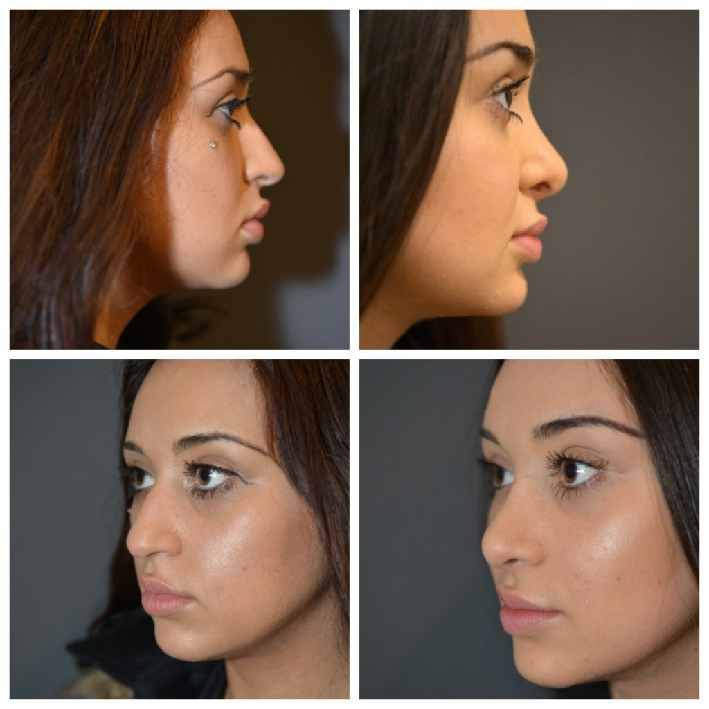 Is Tip Rhinoplasty Right For Me?