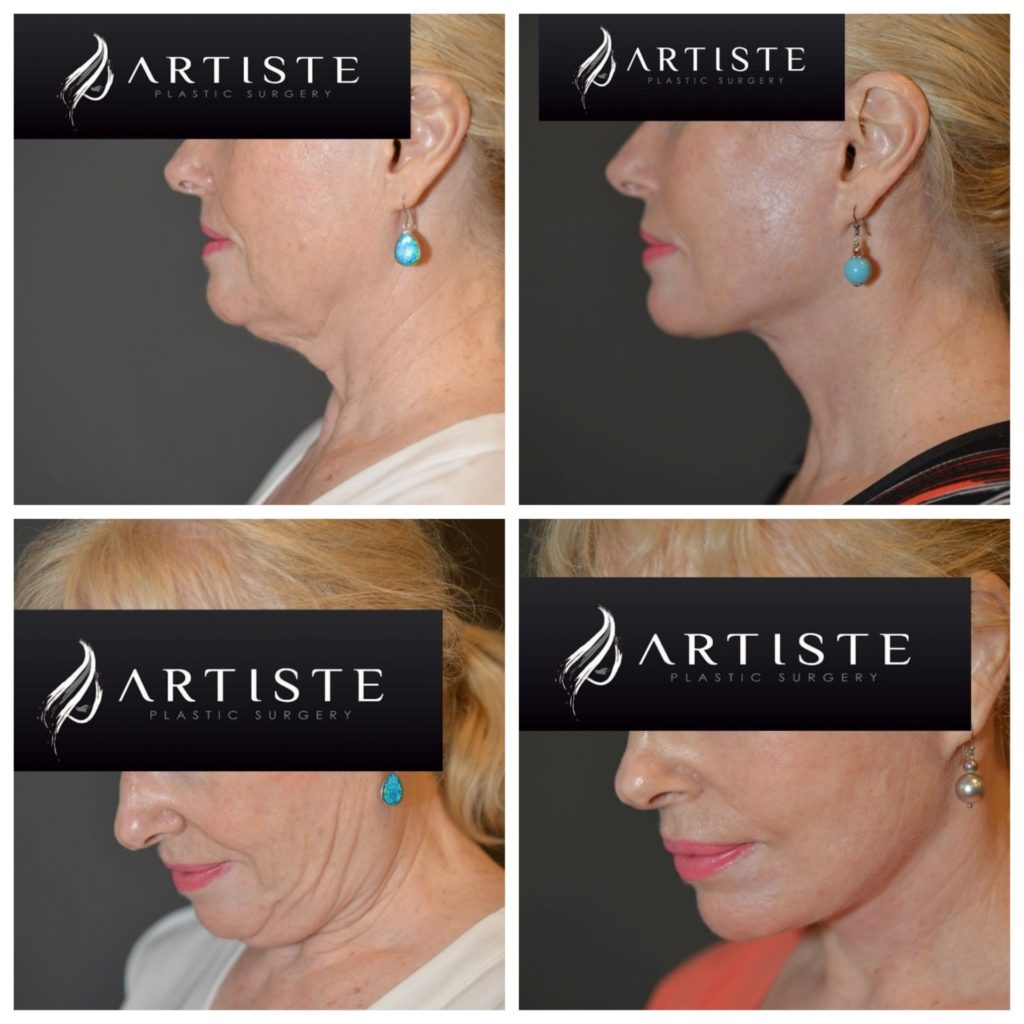High SMAS Facelift at Artiste