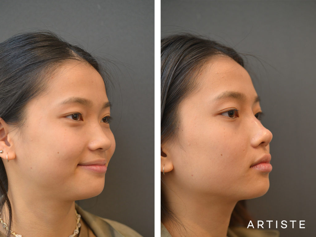 19 Years Old F Augmentation Asian Rhinoplasty