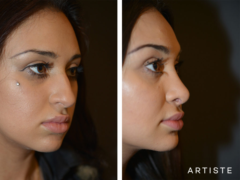 19 Years Old Total Nose Rhinoplasty