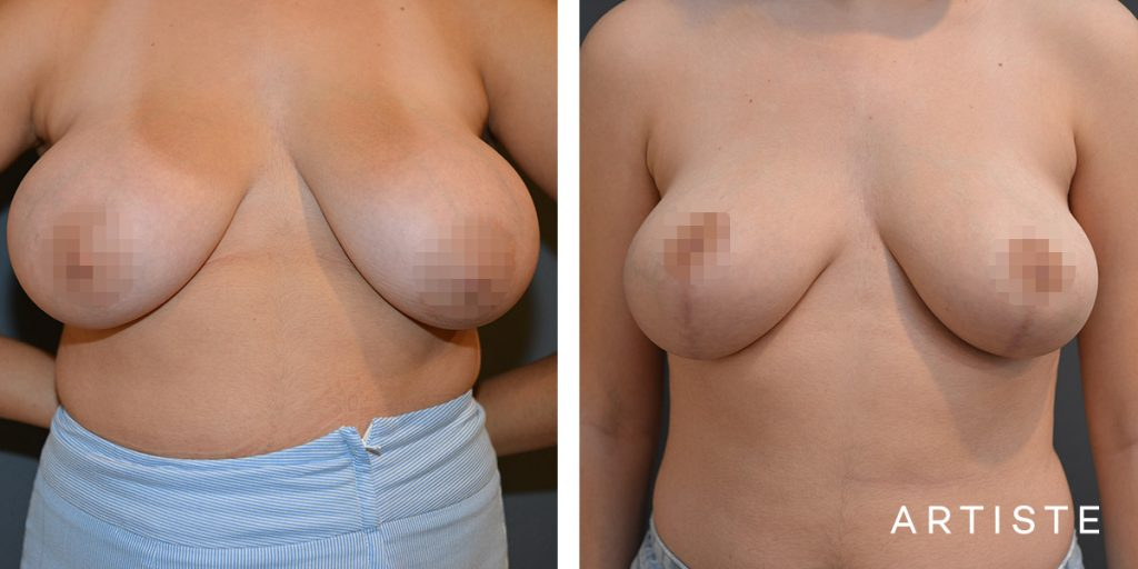 20 Year Old Breast Reduction + Lift