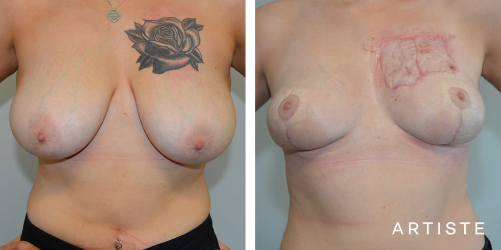 21 Year Old Breast Lift + Removal of Tattoo + Skin Graft