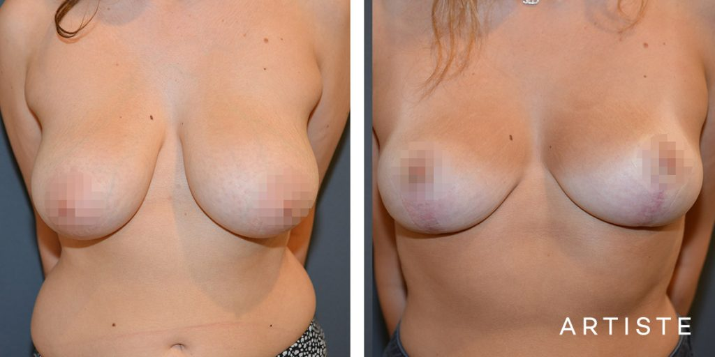 21 Year Old Breast Lift + Shape