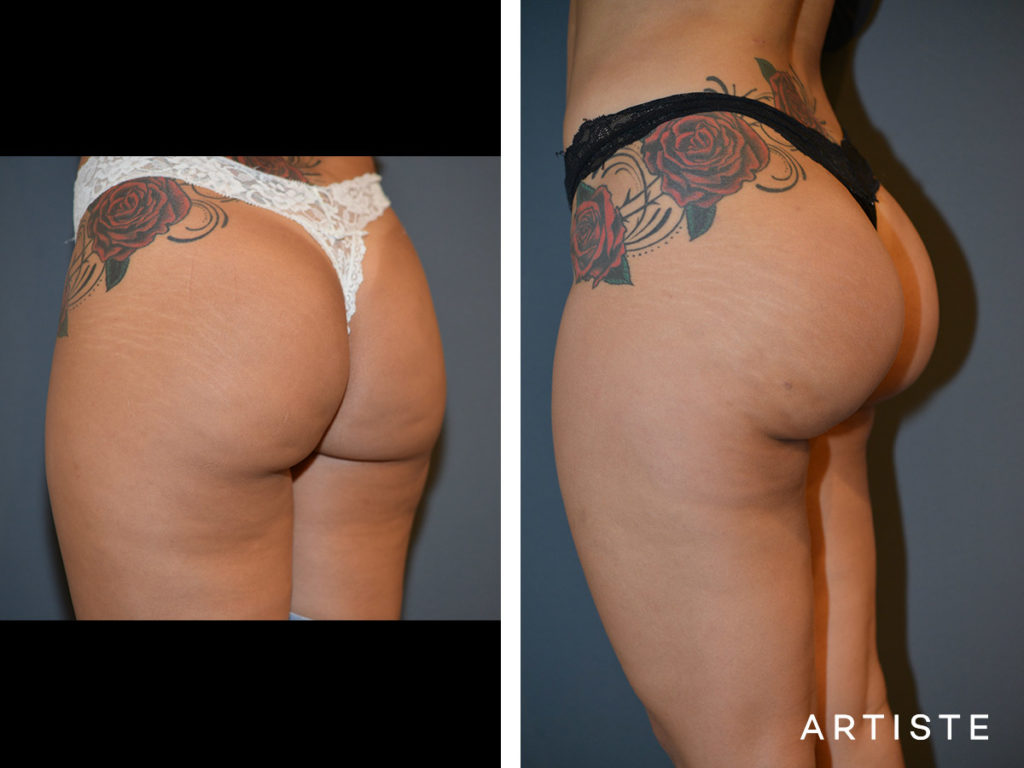 25 Year Old Brazilian Butt Lift with Fat + Implants