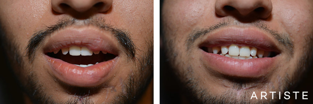 25 Year Old Male Scar Revision Upper Left Lip