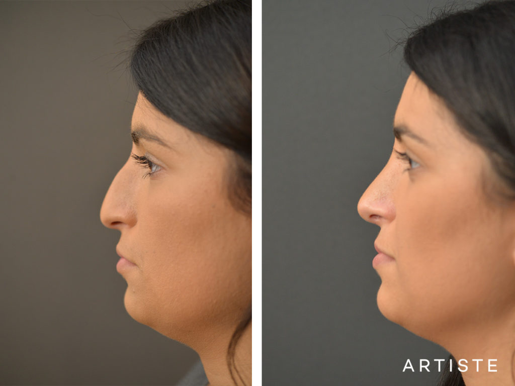 25 Years Old Total Nose Rhinoplasty