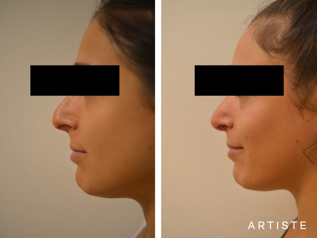 25 Years Old Dorsal Reduction Rhinoplasty