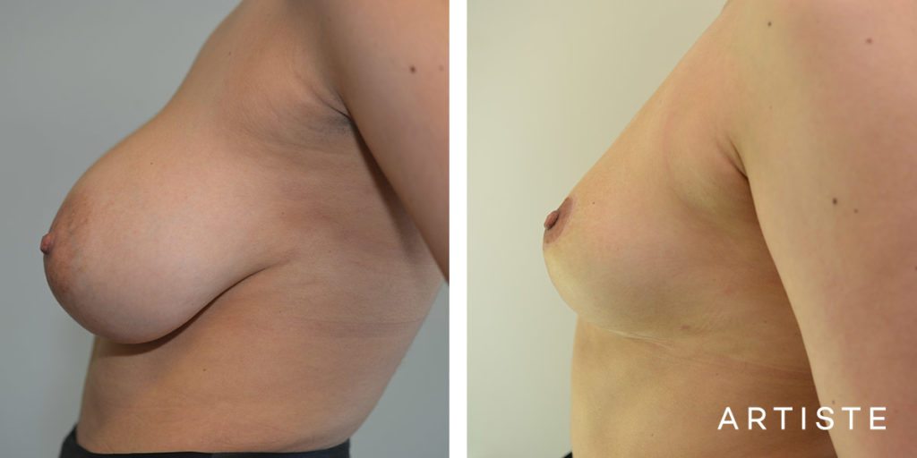 26 Year Old Removal of Implants + Lift