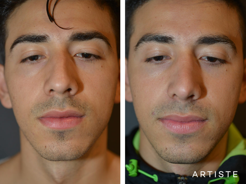 26 Years Old Dorsal Reduction Rhinoplasty