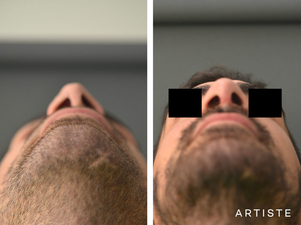 27 Years Old Rib Graft Rhinoplasty