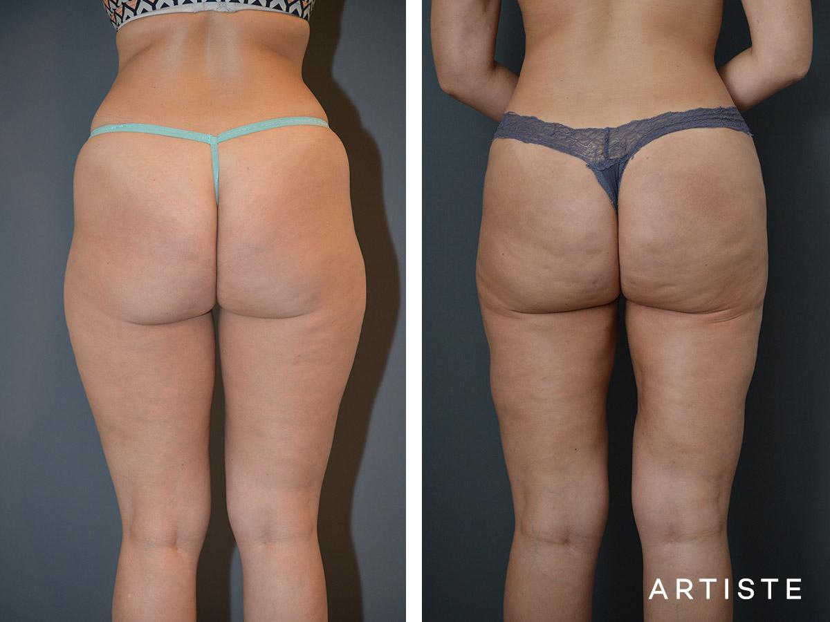 how much is brazilian buttock lift
