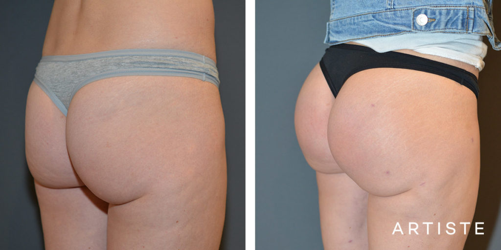 30 Year Old Brazilian Butt Lift with Implants