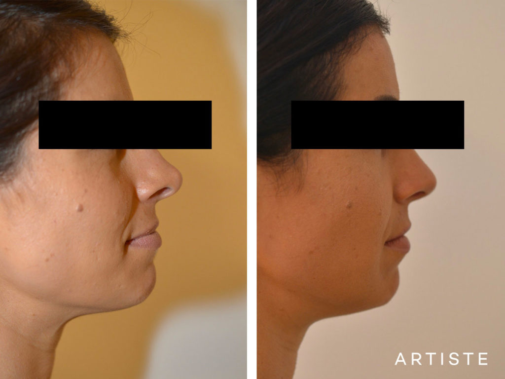 30 Years Old Revision Rhinoplasty
