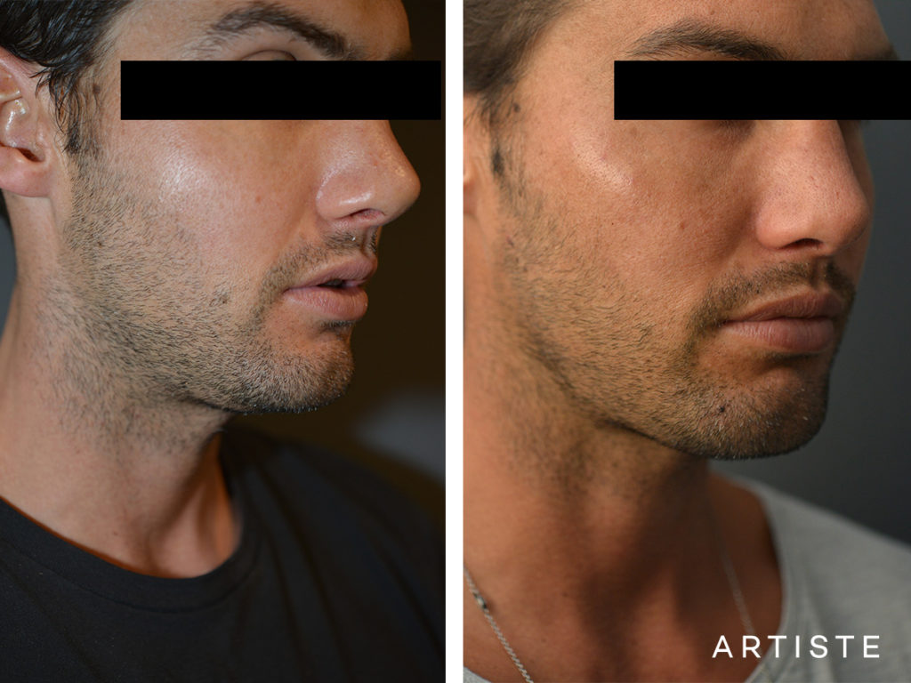 32 Years Old with Facial Filler to Cheek + Jaw Line