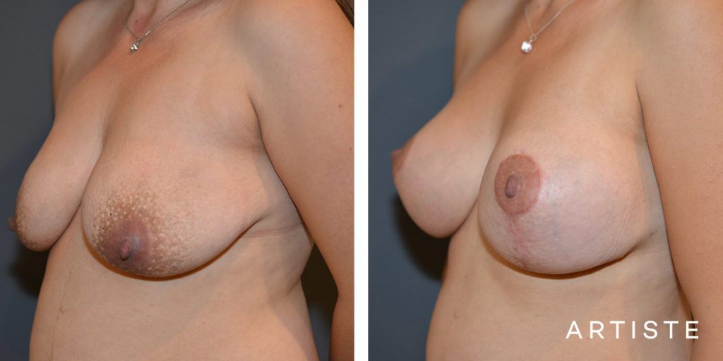 33 Year Old, Breast Augmentation Mastopexy Lift with Round Implants