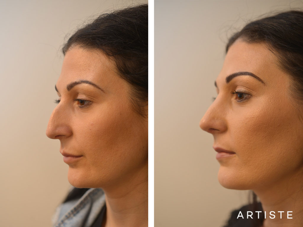 33 Years Old Dorsal + Tip Rhinoplasty