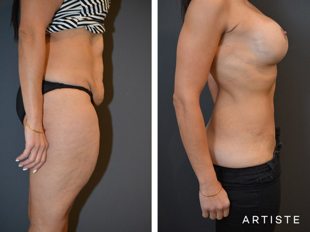 37 Year Old Abdominoplasty + Liposuction and Breast Augmentation