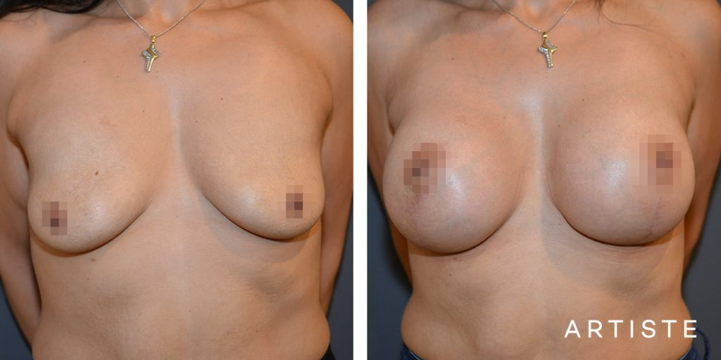 37 Year Old, Breast Augmentation Mastopexy Lift with Round Implants