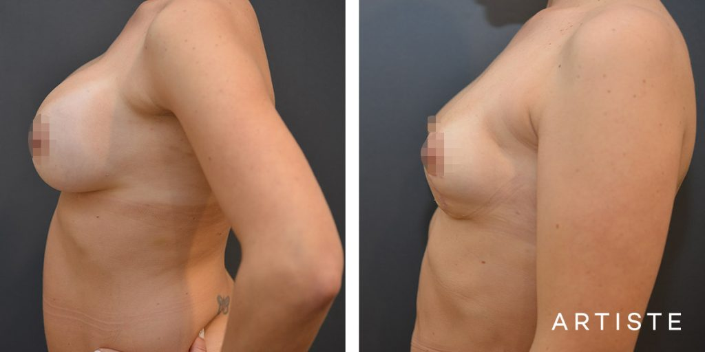 37 Year Old Removal of Implants + Lift