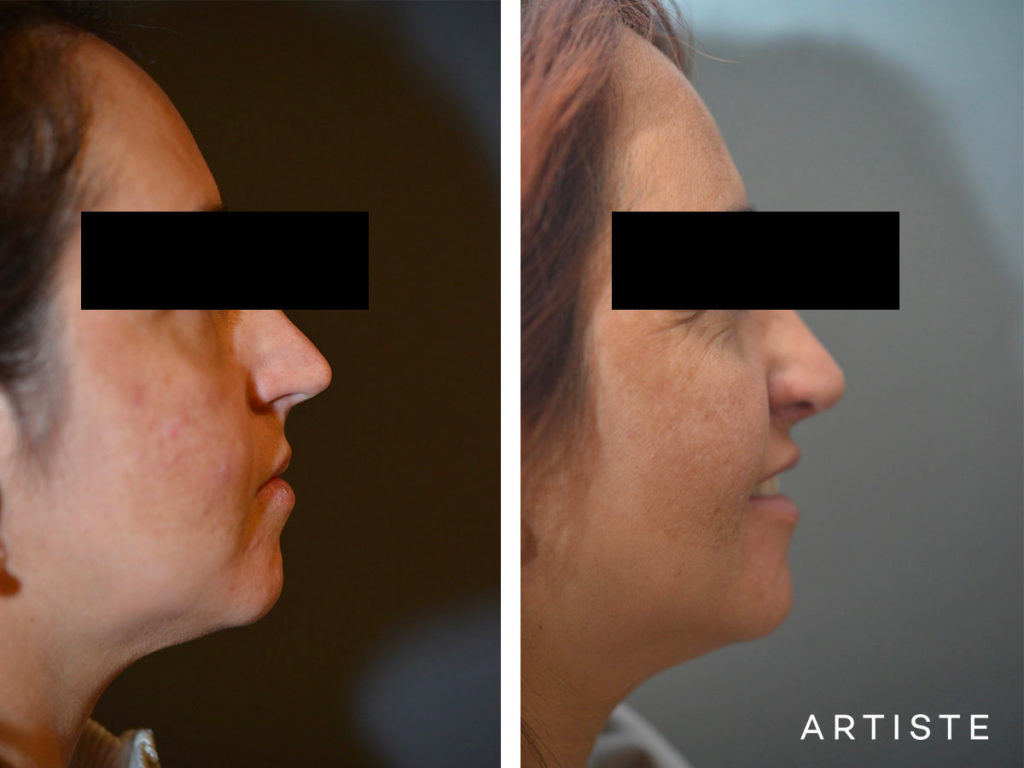 40 Years Old Total Nose Rhinoplasty