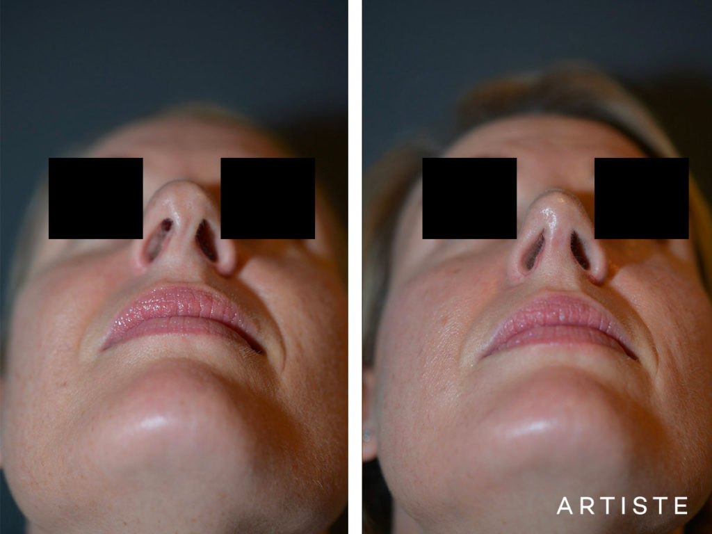 41 Years Old Total Nose Rhinoplasty