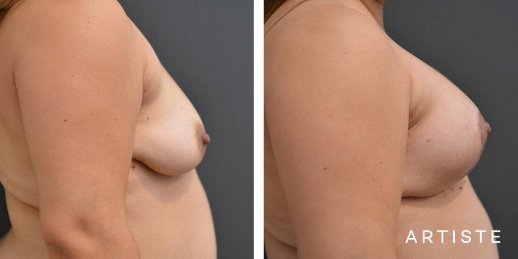 42 Year Old, Breast Augmentation Mastopexy