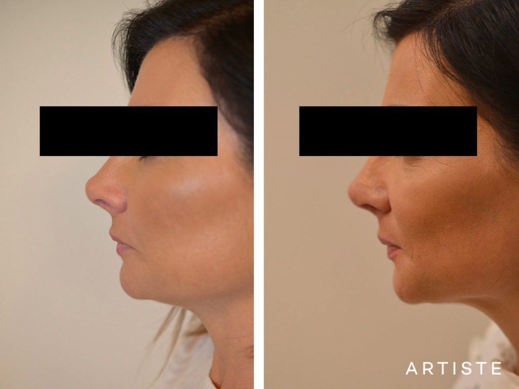 42 Years Old Rib Graft Tertiary Rhinoplasty