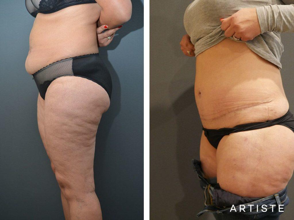43 Year Old, Flat Tummy Plus, Abdominoplasty + Liposuction
