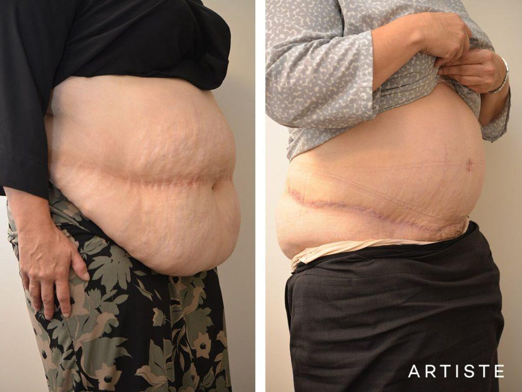 46 Year Old, Flat Tummy, Abdominoplasty