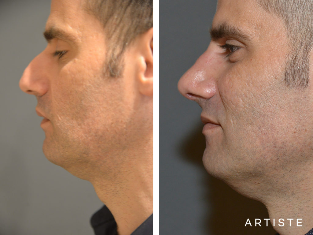 46 Years Old Dorsal Reduction Rhinoplasty