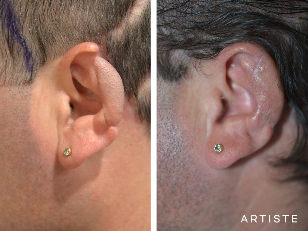 47 Year Old Partial Ear Reconstruction Fascia Flap