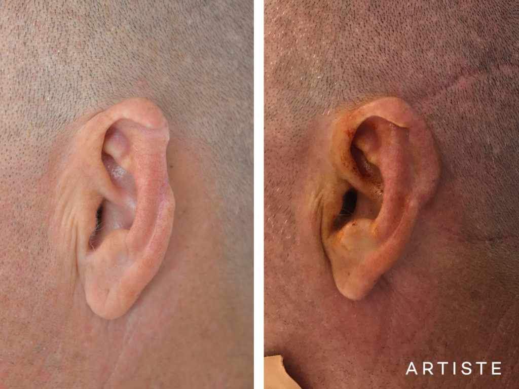 47 Year Old Partial Ear Reconstruction Trauma