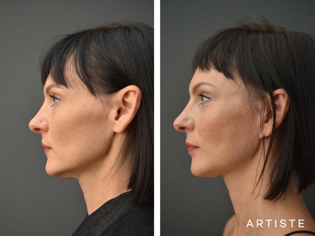 47 Year Old Short Scar Facelift