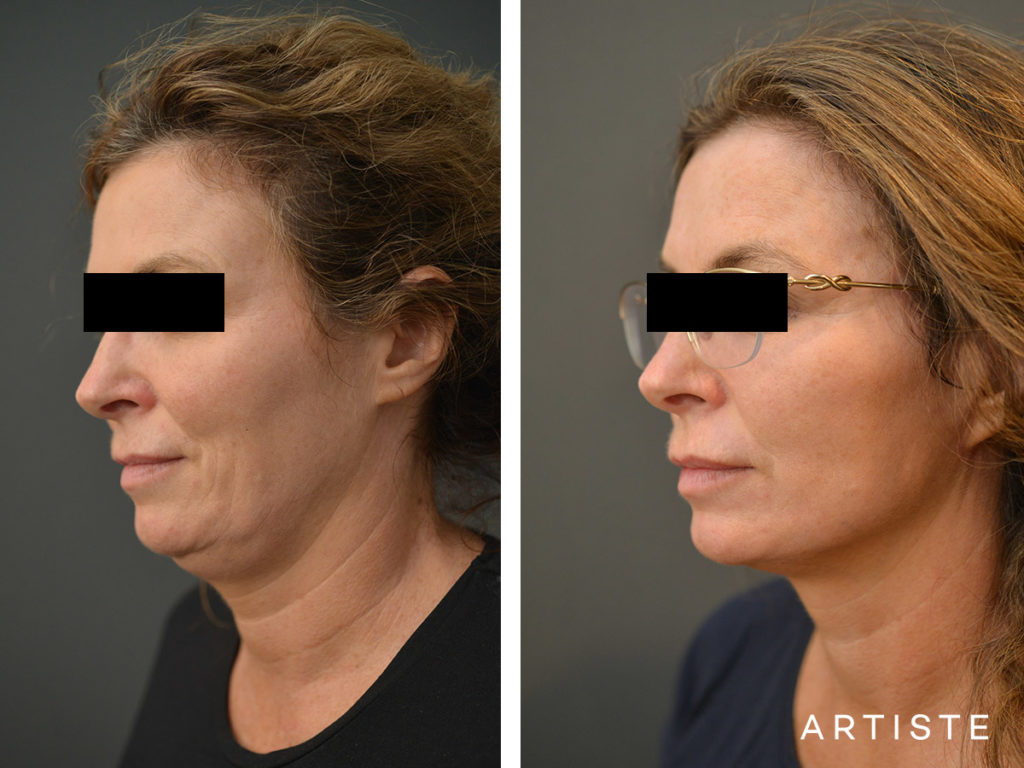 49 Year Old Short Scar Facelift + Fat Graft