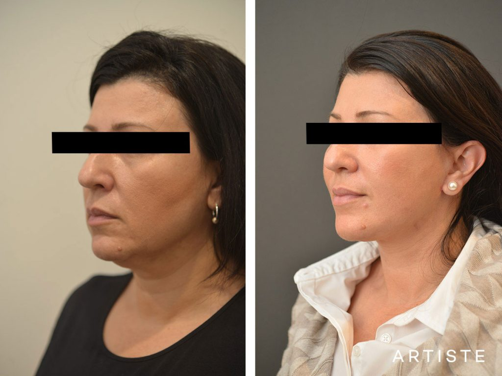 49 Year Old Short Scar Facelift + Neck Liposuction