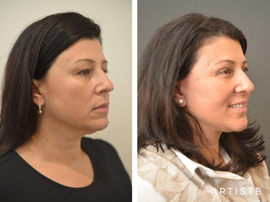 49 Year Old Short Scar Facelift + Neck Liposuction