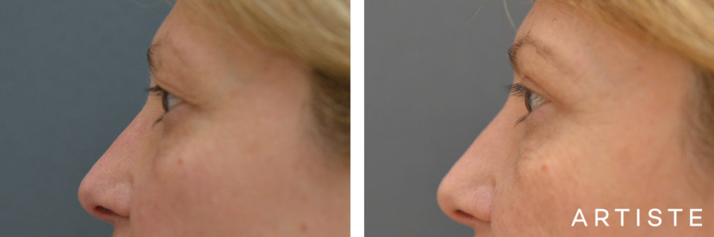 49 Year Old Upper Eyelid Open Eye Surgery-Blepharoplasty
