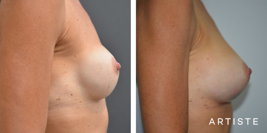52 Year Old Breast Implant Exchange from Round to Tear Drop - 380cc