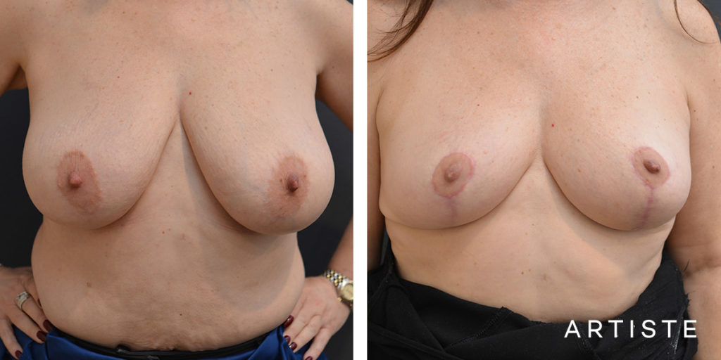 53 Year Old Breast Lift + Shape