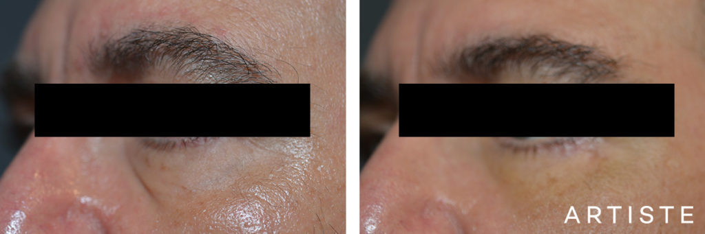 53 Year Old Lower Eyelid Blepharoplasty