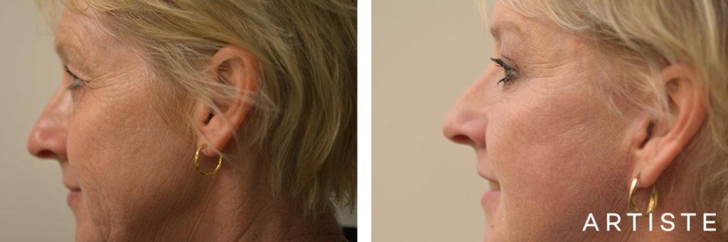 53 Year Old Upper Eyelid Open Eyes + Short Scar Facelift
