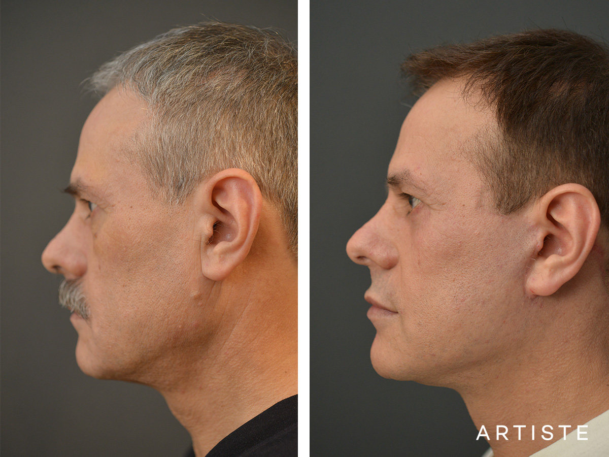 53 Years Old Male Facelift and Lower Eyelids