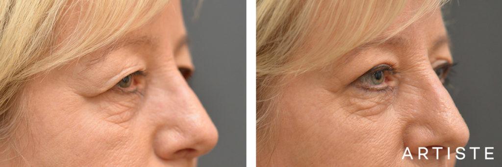 56 Year Old Open Eye Upper Blepharoplasty