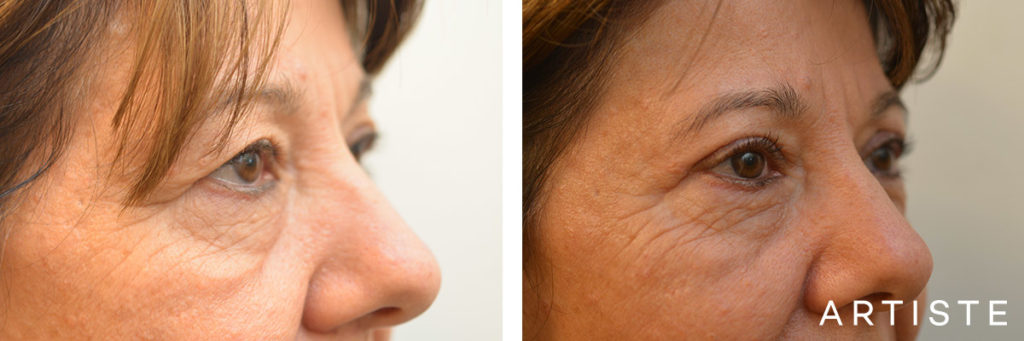 56 Year Old Upper Blepharoplasty Open Eyes