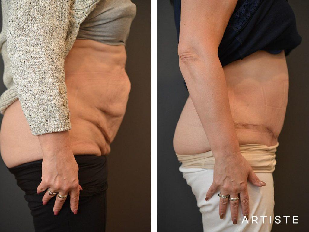 60 Year Old, Flat Tummy, Abdominoplasty