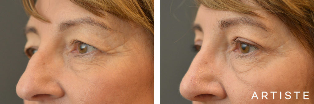 60 Year Old Open Eye, Upper Blepharoplasty + Rhinoplasty