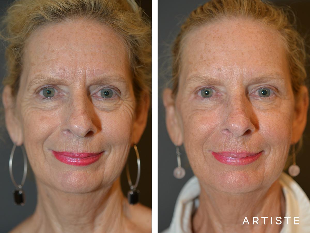 Prevent Facial Ageing