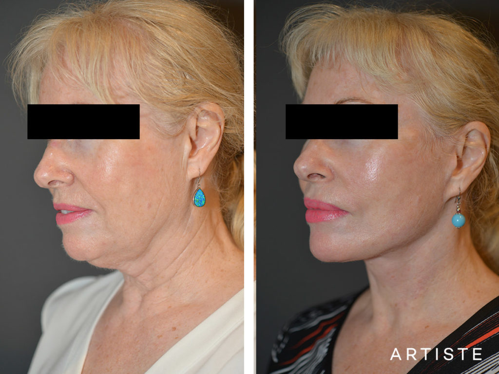 64 Years Old High SMAS Face and Neck Lift