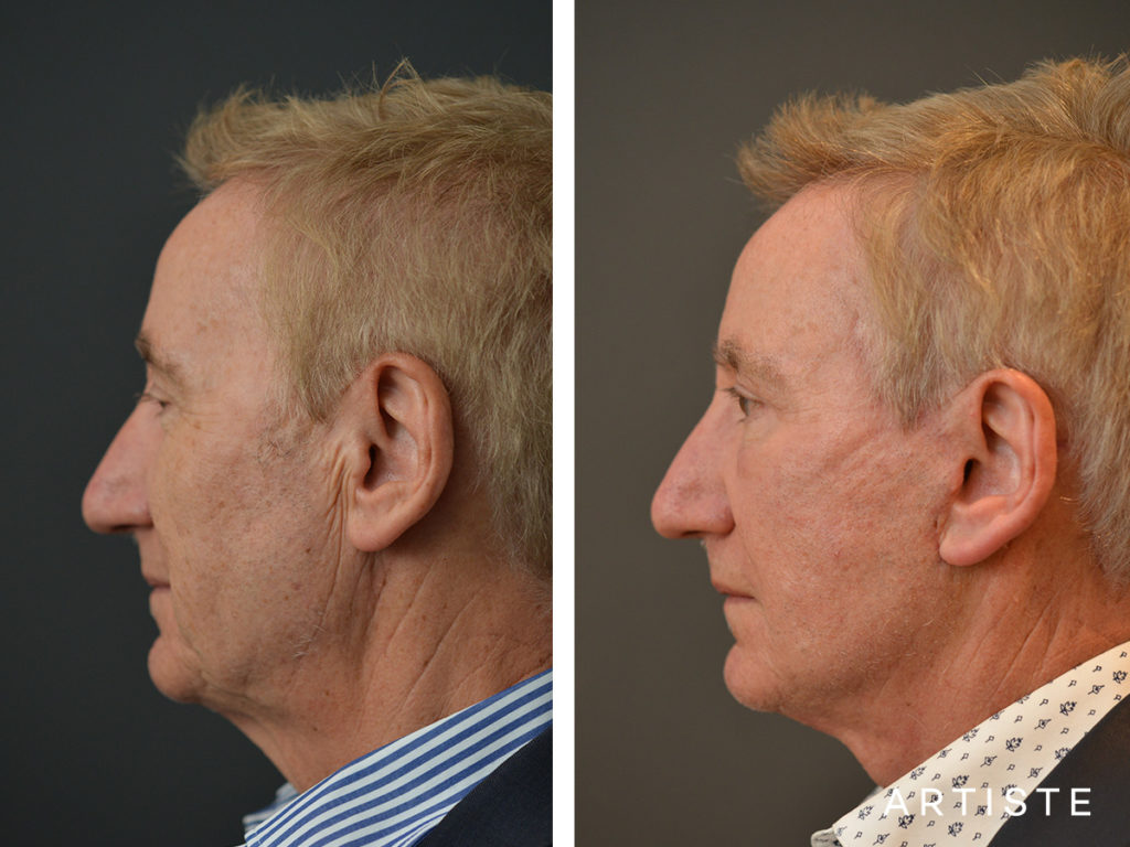 65 Years Old Face and Neck Lift